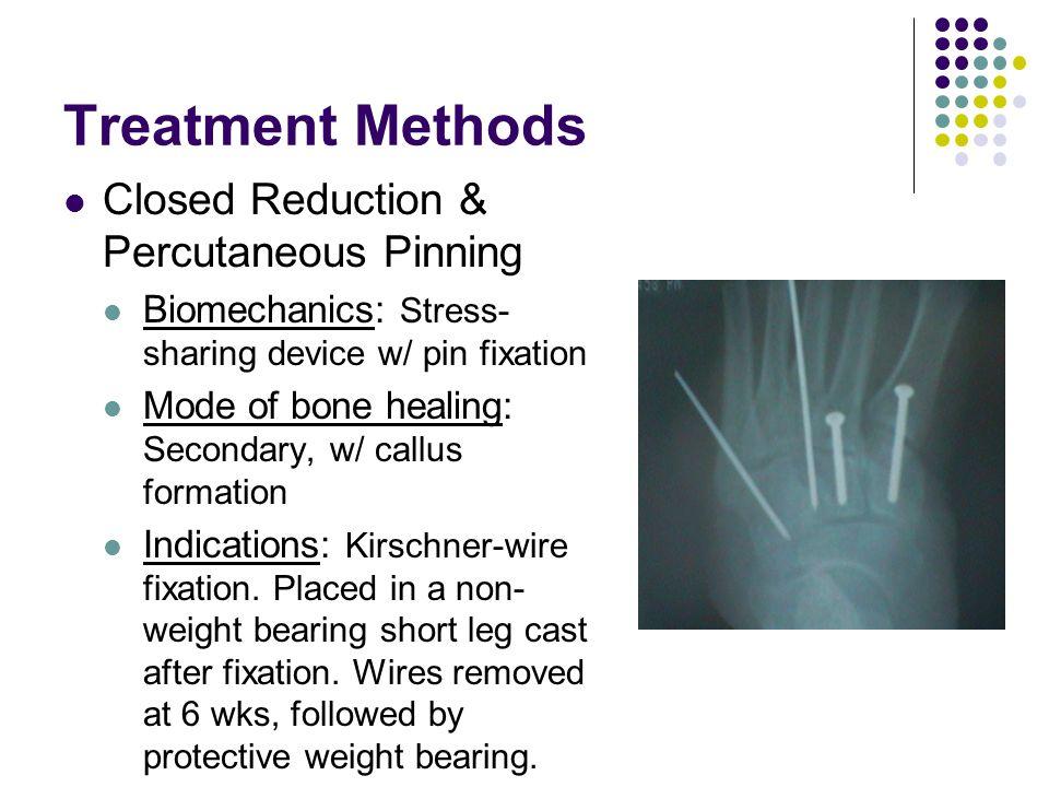 Treatment Methods Closed Reduction & Percutaneous Pinning
