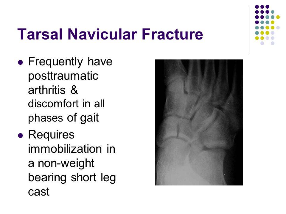 Tarsal Navicular Fracture