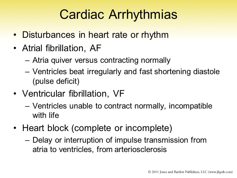 Cardiac Arrhythmias Disturbances in heart rate or rhythm