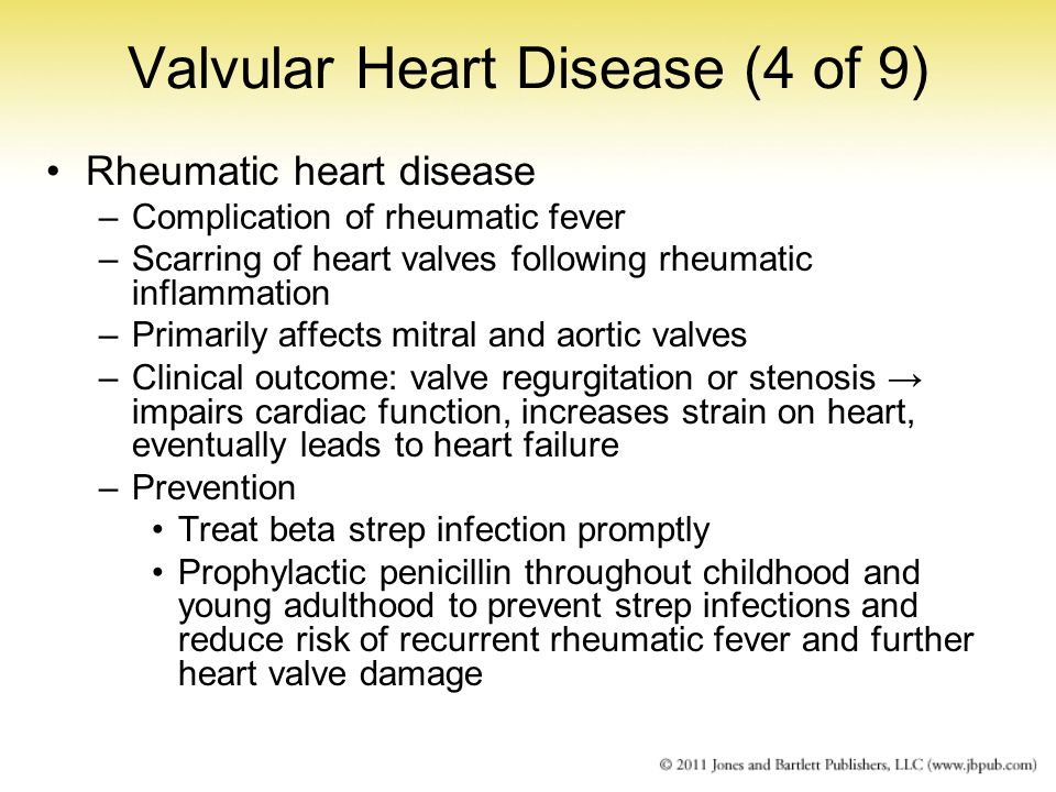 Valvular Heart Disease (4 of 9)