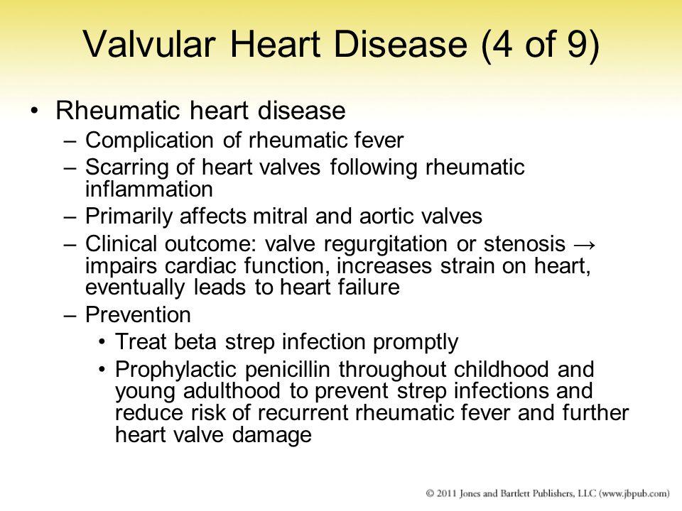 Valvular Heart Disease (4 of 9)