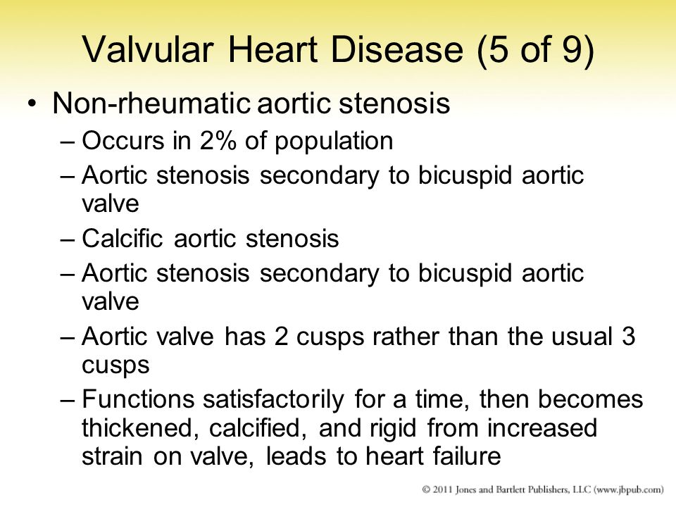 Valvular Heart Disease (5 of 9)
