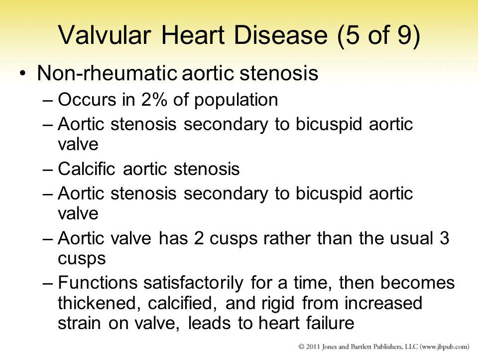 Valvular Heart Disease (5 of 9)