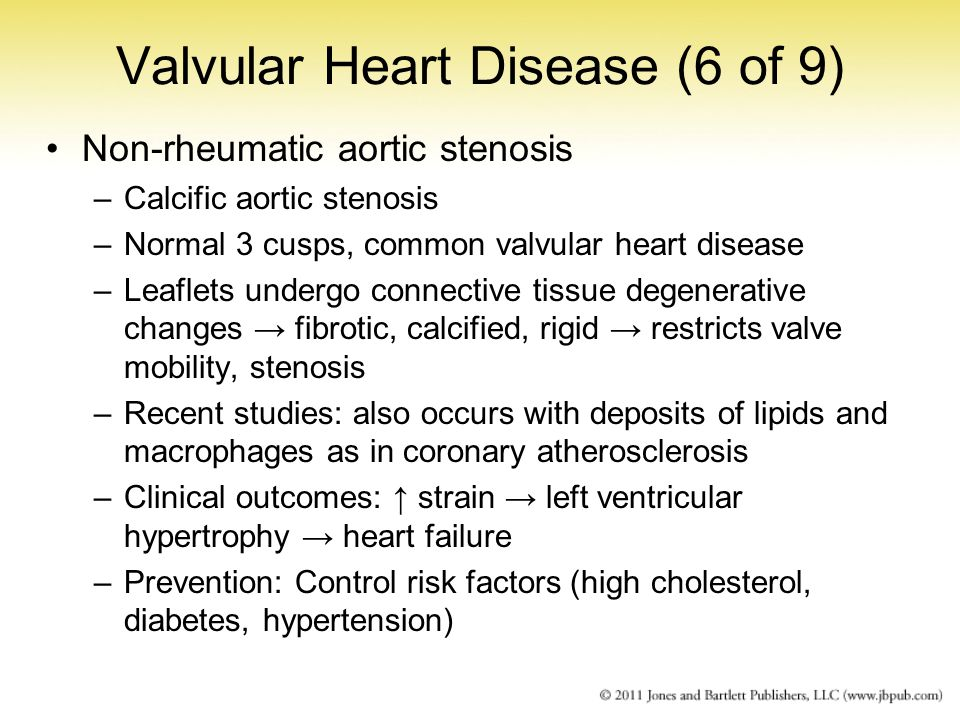 Valvular Heart Disease (6 of 9)