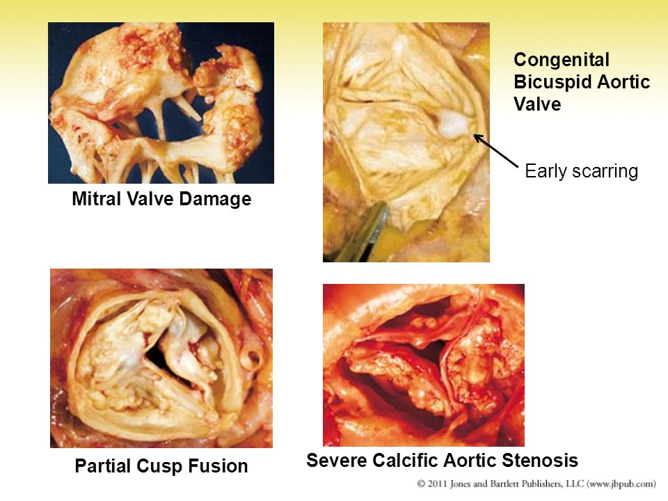 Severe Calcific Aortic Stenosis