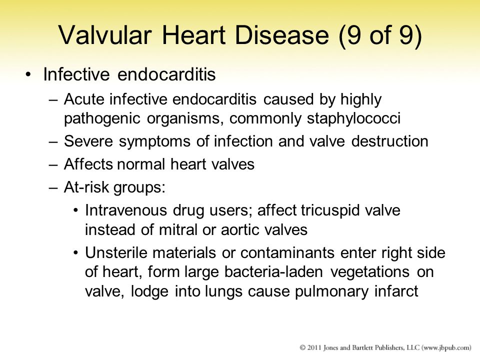 Valvular Heart Disease (9 of 9)