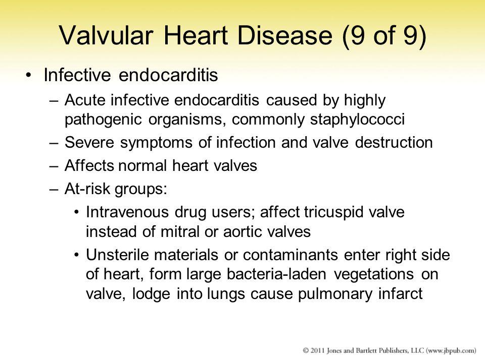 Valvular Heart Disease (9 of 9)