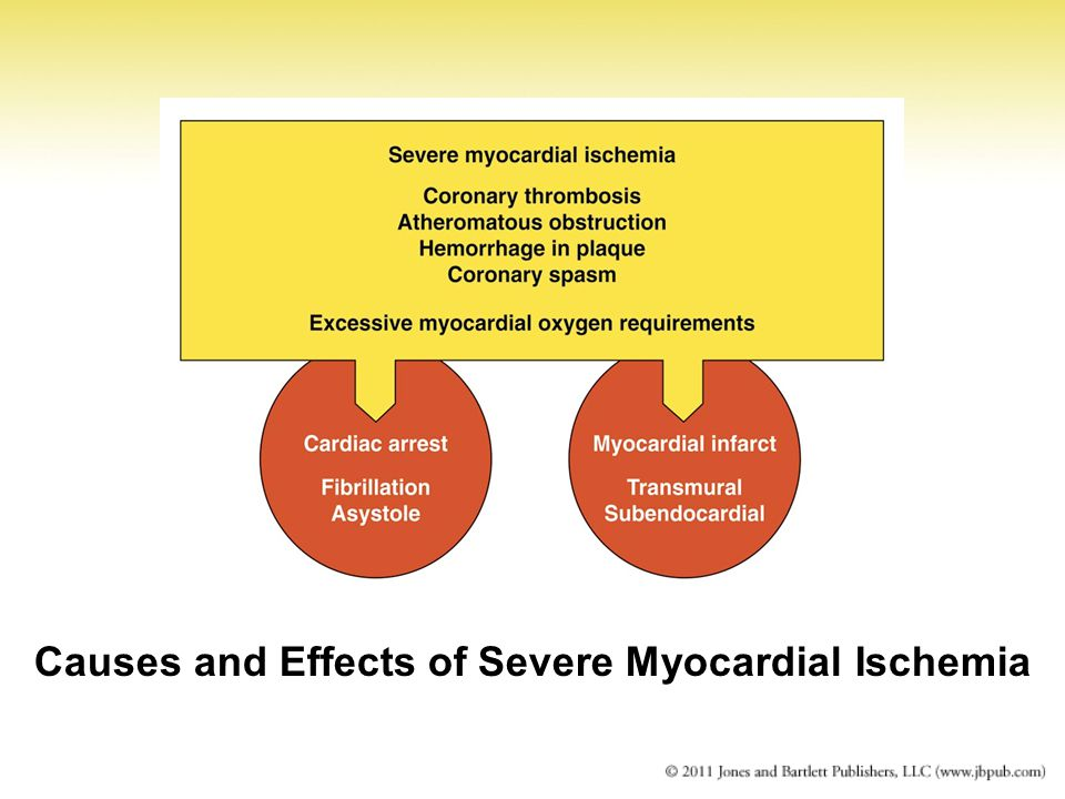 the definition and causes of a myocardial infraction Define myocardial infarction: heart attack definition of myocardial infarction: the preliminary cause of death was acute myocardial infarction and.