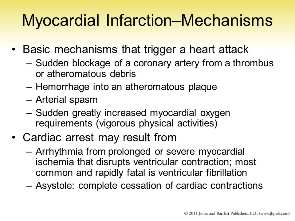 Myocardial Infarction–Mechanisms