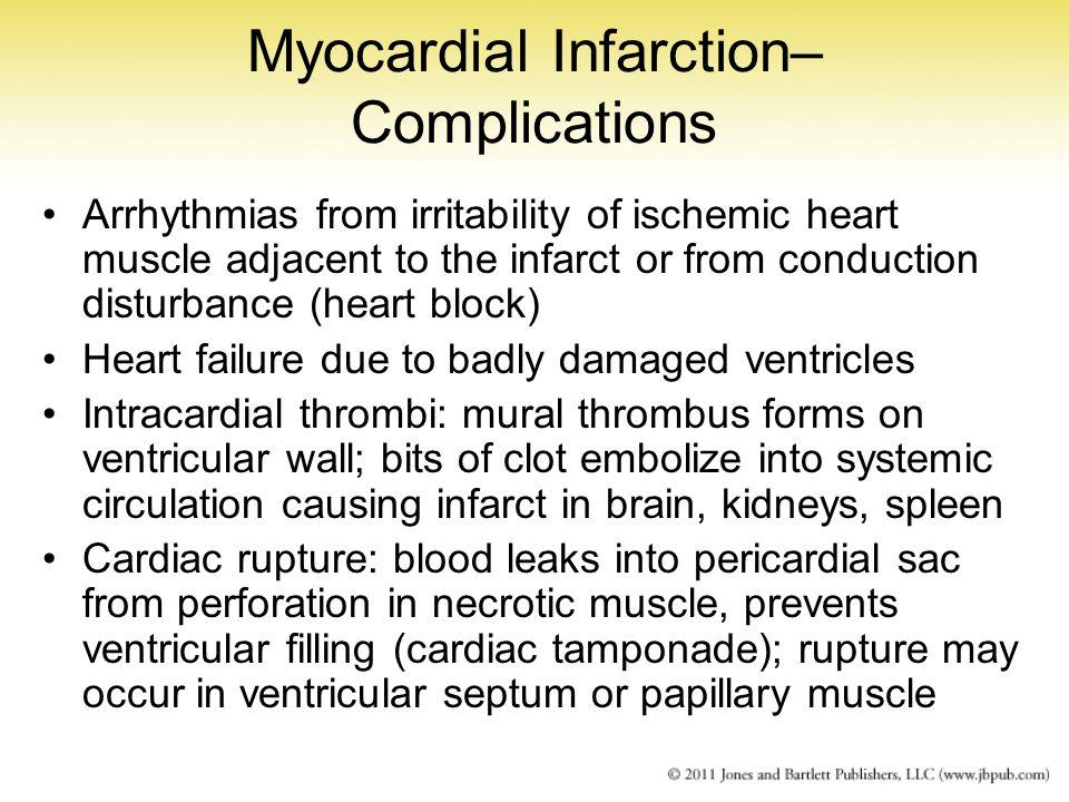 Myocardial Infarction– Complications
