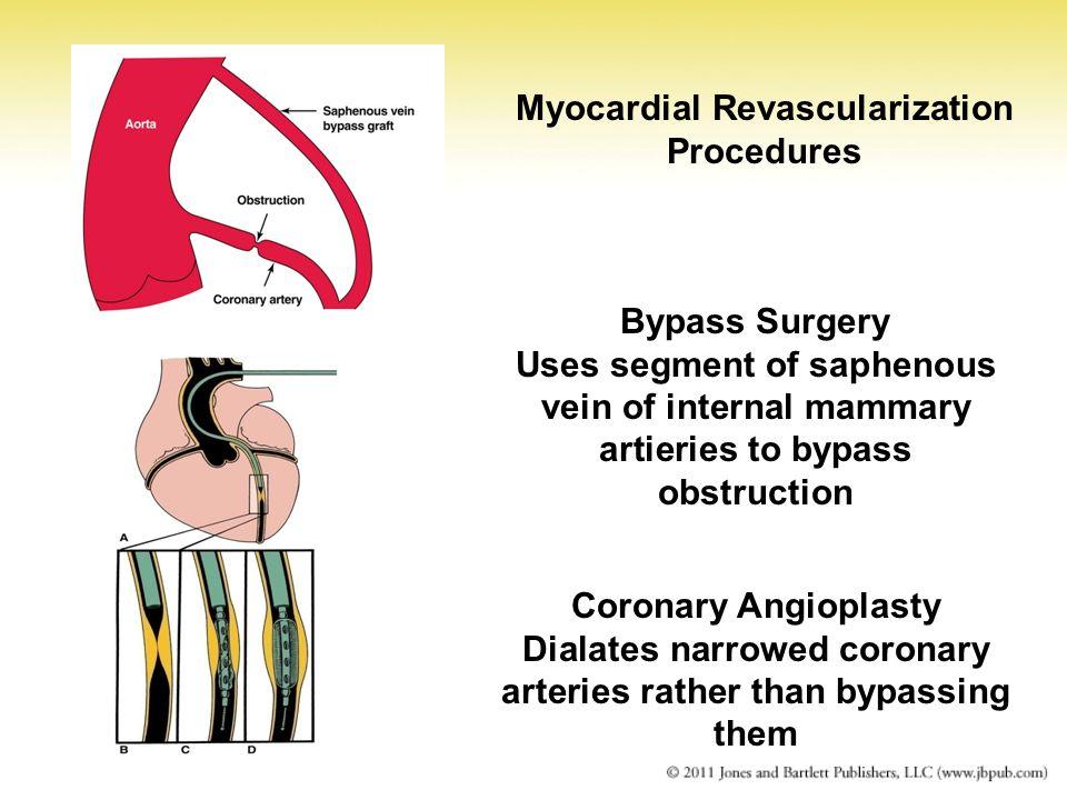 Myocardial Revascularization Procedures
