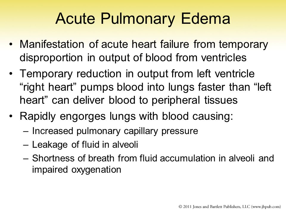 Acute Pulmonary Edema Manifestation of acute heart failure from temporary disproportion in output of blood from ventricles.