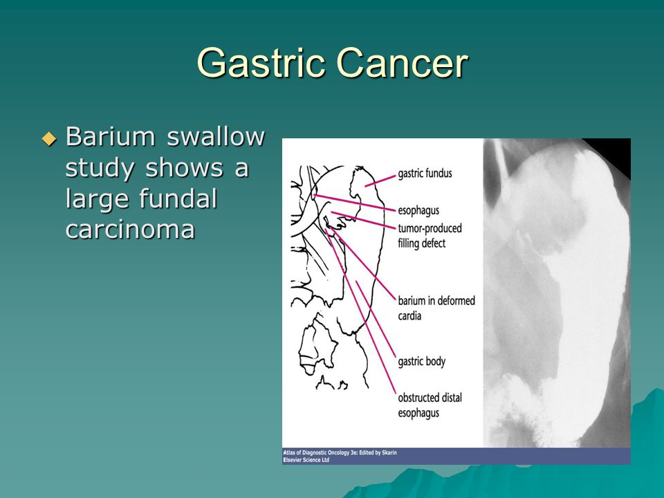 Gastric Cancer Barium swallow study shows a large fundal carcinoma