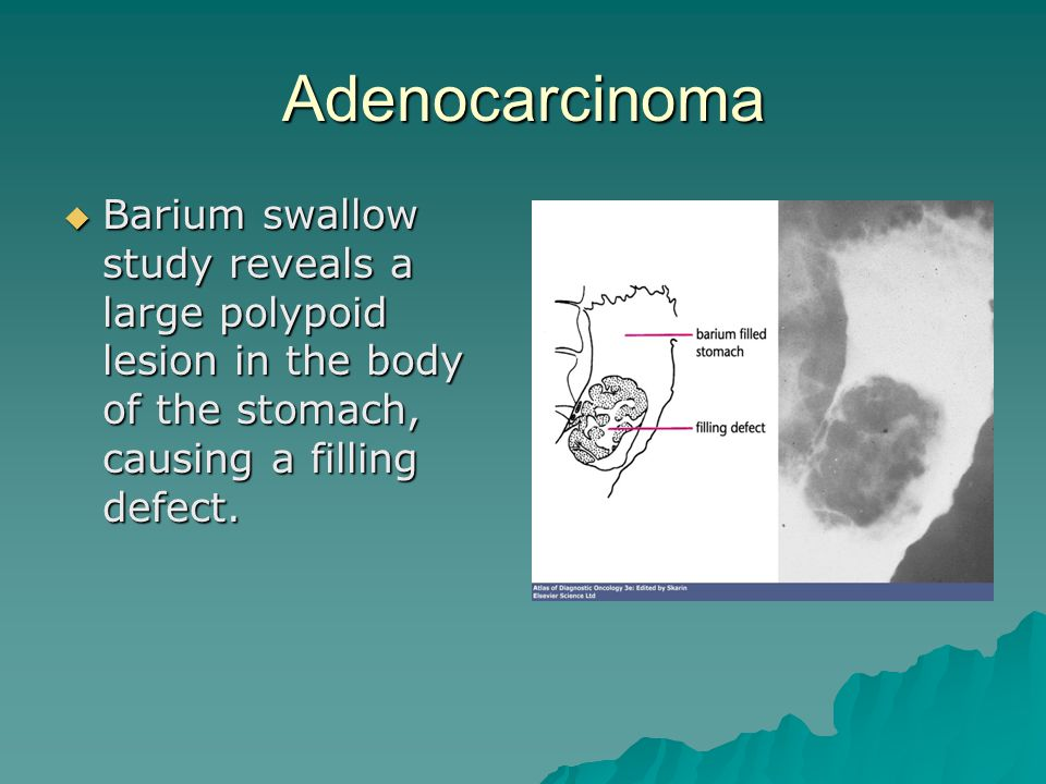 Adenocarcinoma Barium swallow study reveals a large polypoid lesion in the body of the stomach, causing a filling defect.