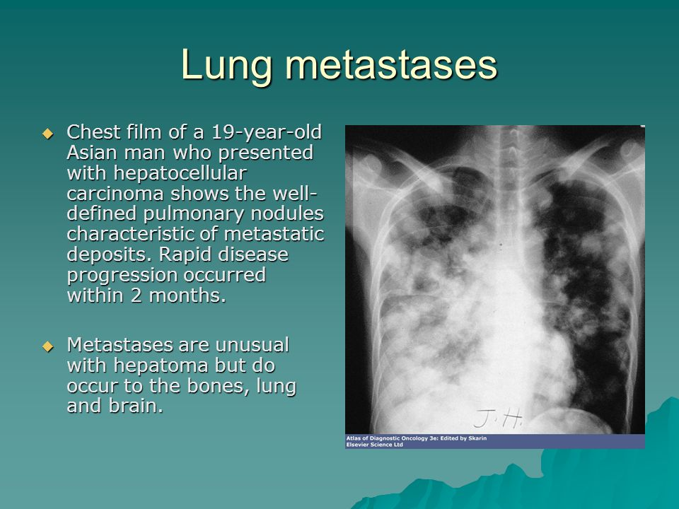 Lung metastases