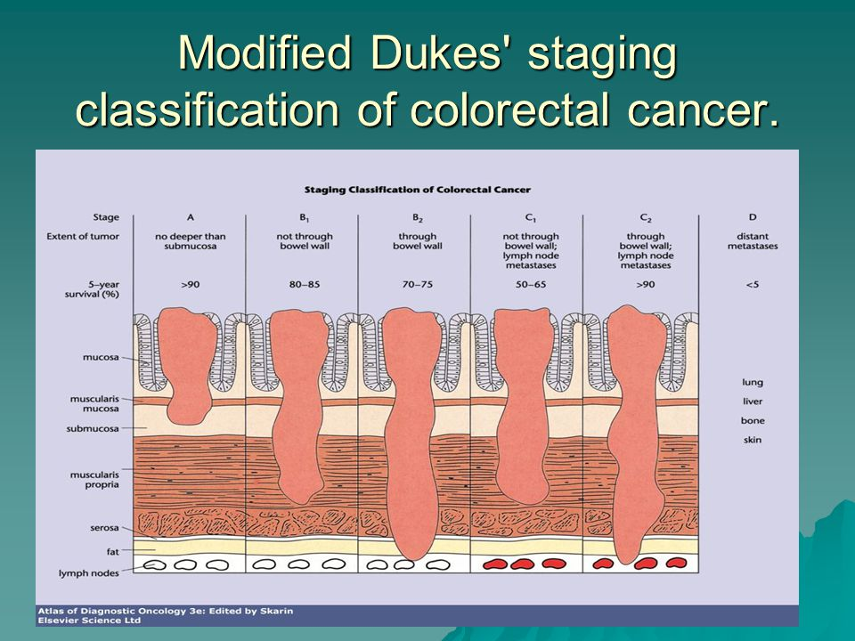 Modified Dukes staging classification of colorectal cancer.