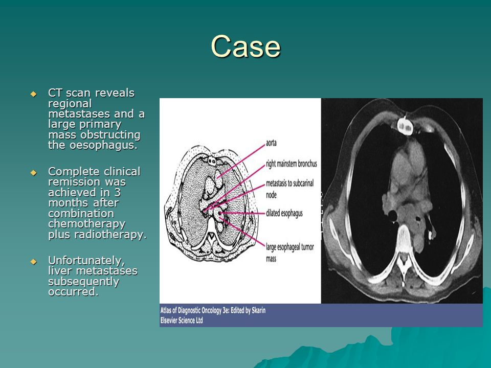 Case CT scan reveals regional metastases and a large primary mass obstructing the oesophagus.