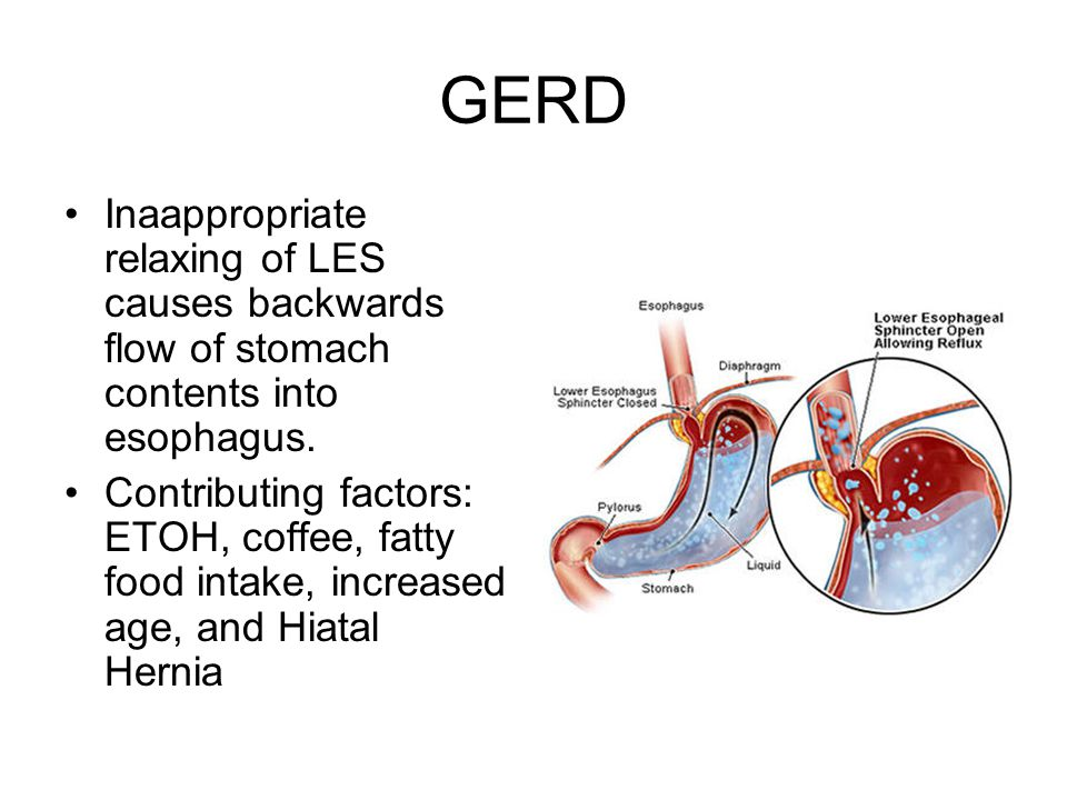 GERD Inaappropriate relaxing of LES causes backwards flow of stomach contents into esophagus.