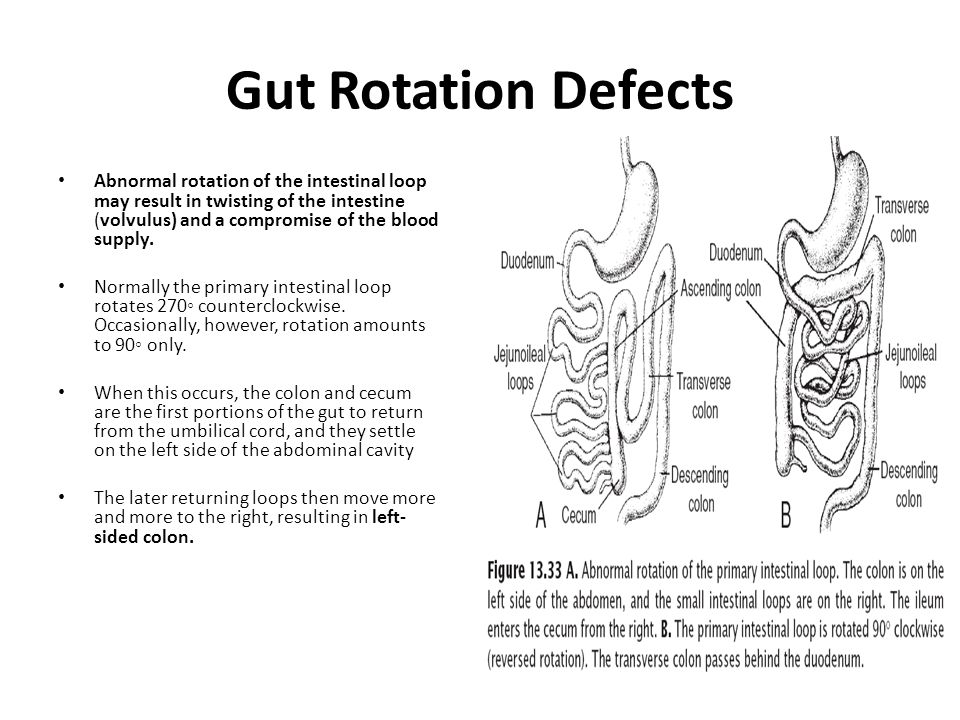 Gut Rotation Defects