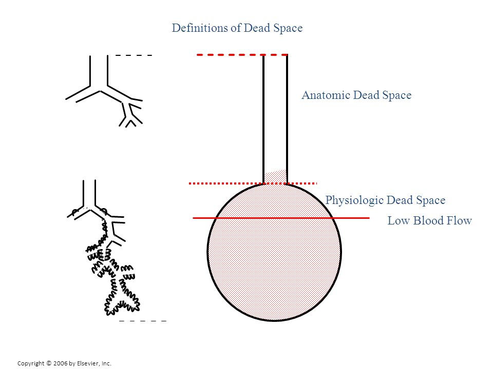 Definitions of Dead Space