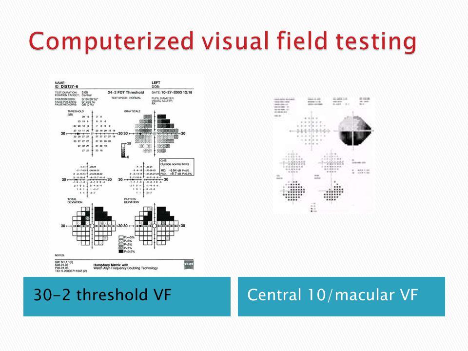 Computerized visual field testing