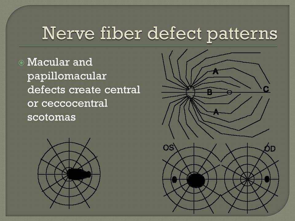 Nerve fiber defect patterns