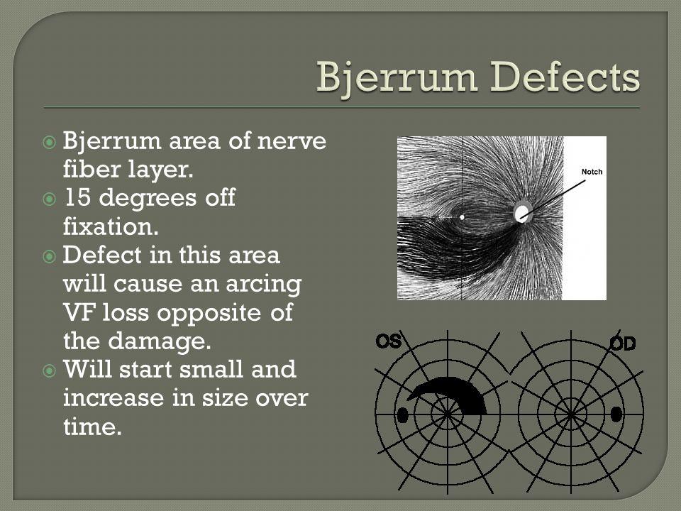 Bjerrum Defects Bjerrum area of nerve fiber layer.