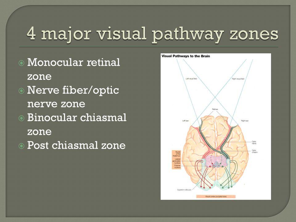 4 major visual pathway zones
