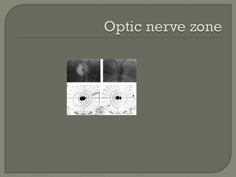 Optic nerve zone