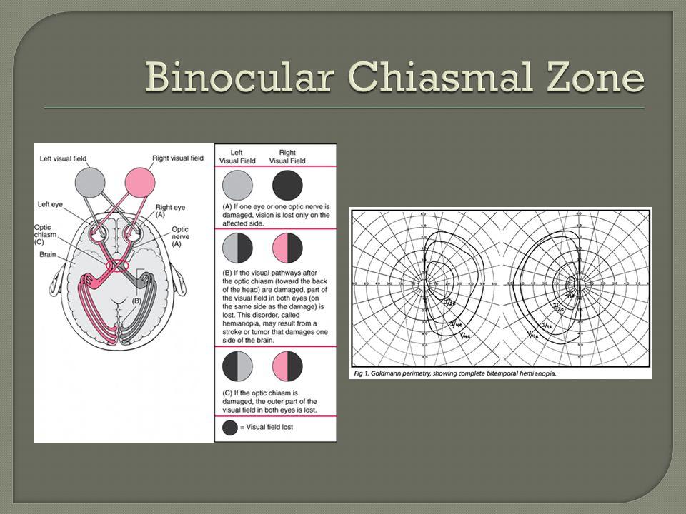 Binocular Chiasmal Zone