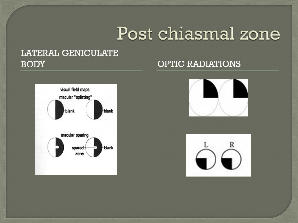 Post chiasmal zone Lateral geniculate body Optic Radiations