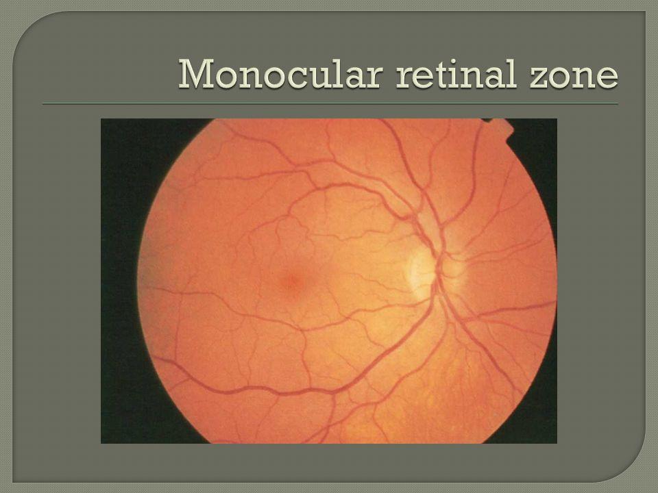 Monocular retinal zone