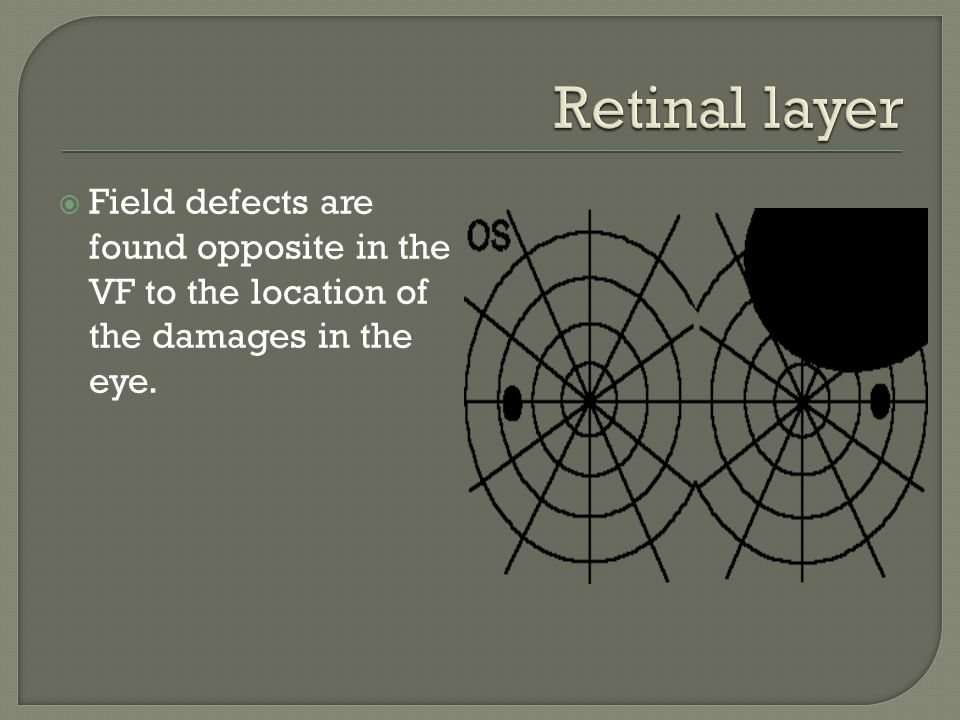 Retinal layer Field defects are found opposite in the VF to the location of the damages in the eye.