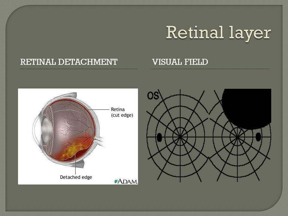 Retinal layer Retinal detachment Visual field