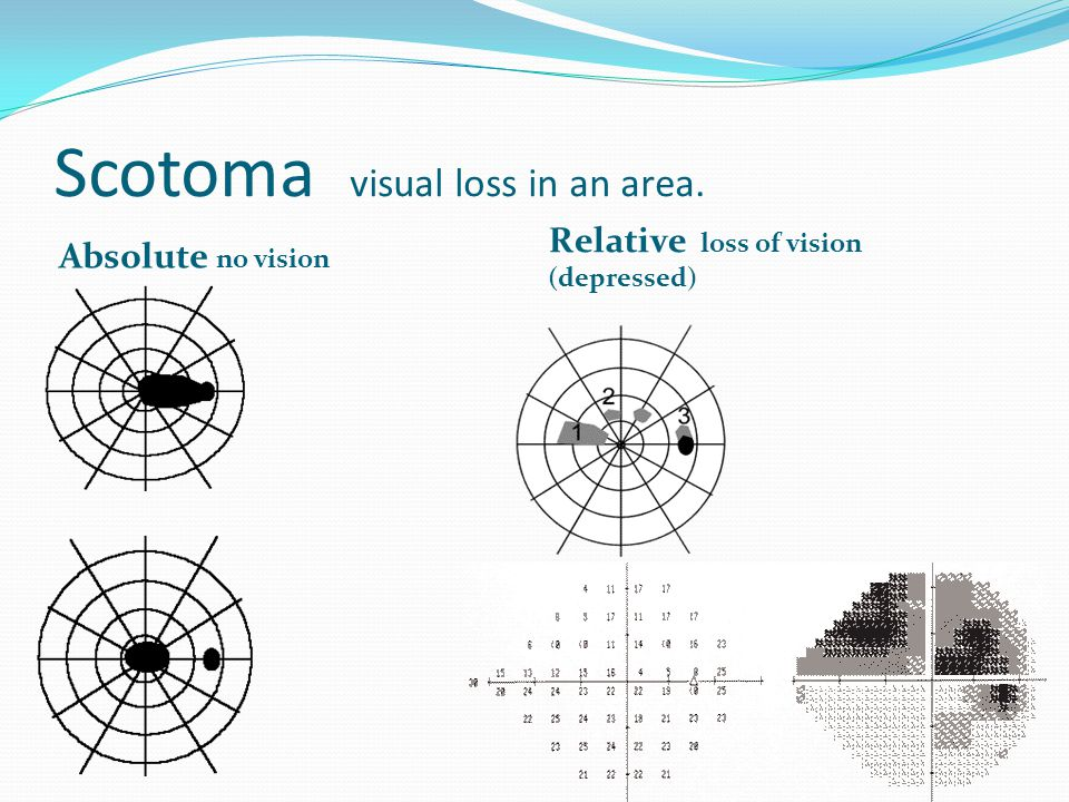 Scotoma visual loss in an area.