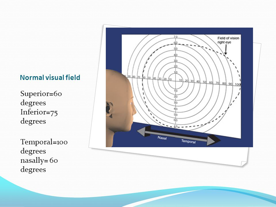 Normal visual field Superior=60 degrees Inferior=75 degrees.