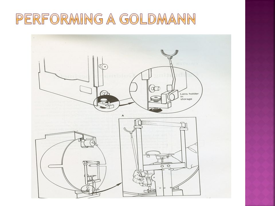 Performing a Goldmann