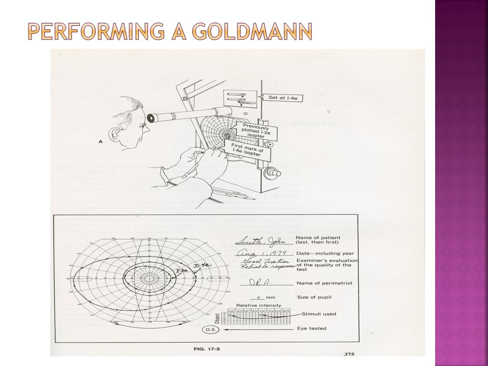 Performing a Goldmann