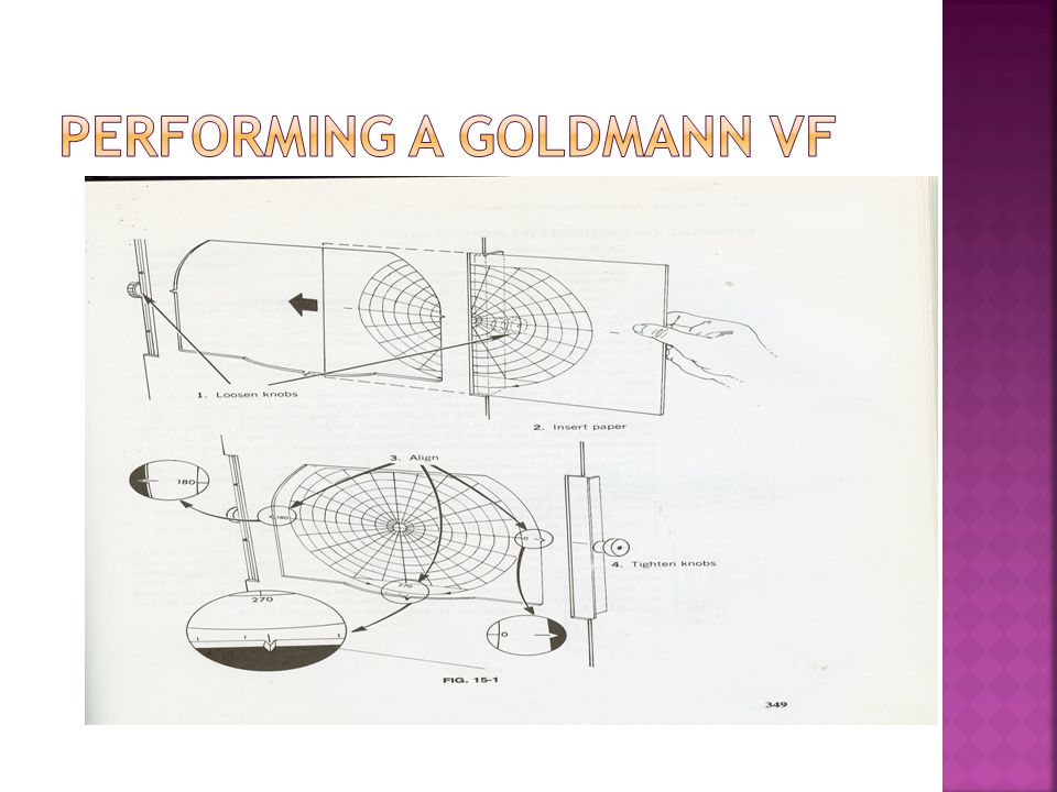 Performing a Goldmann VF