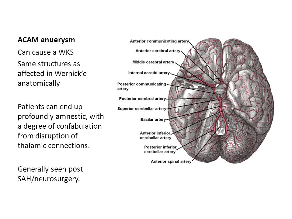 ACAM anuerysm Can cause a WKS. Same structures as affected in Wernick'e anatomically.