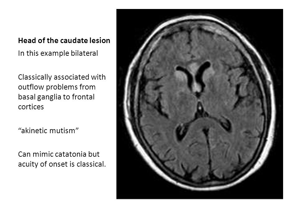 Head of the caudate lesion