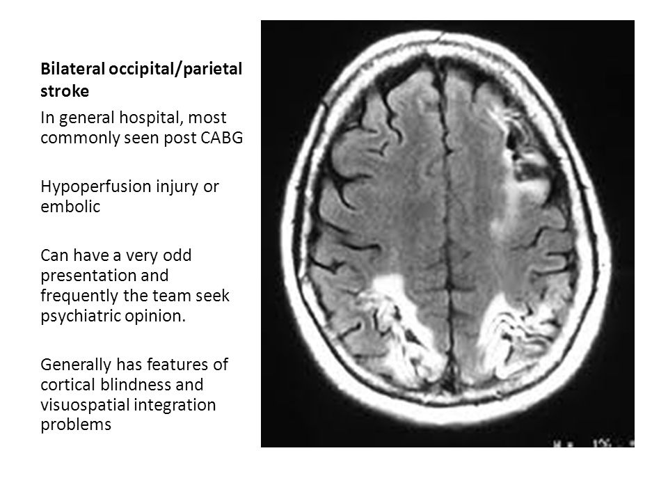 Bilateral occipital/parietal stroke