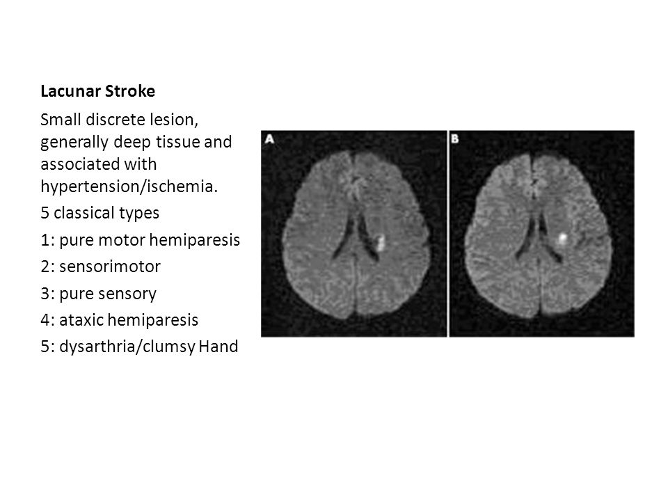 Lacunar Stroke Small discrete lesion, generally deep tissue and associated with hypertension/ischemia.