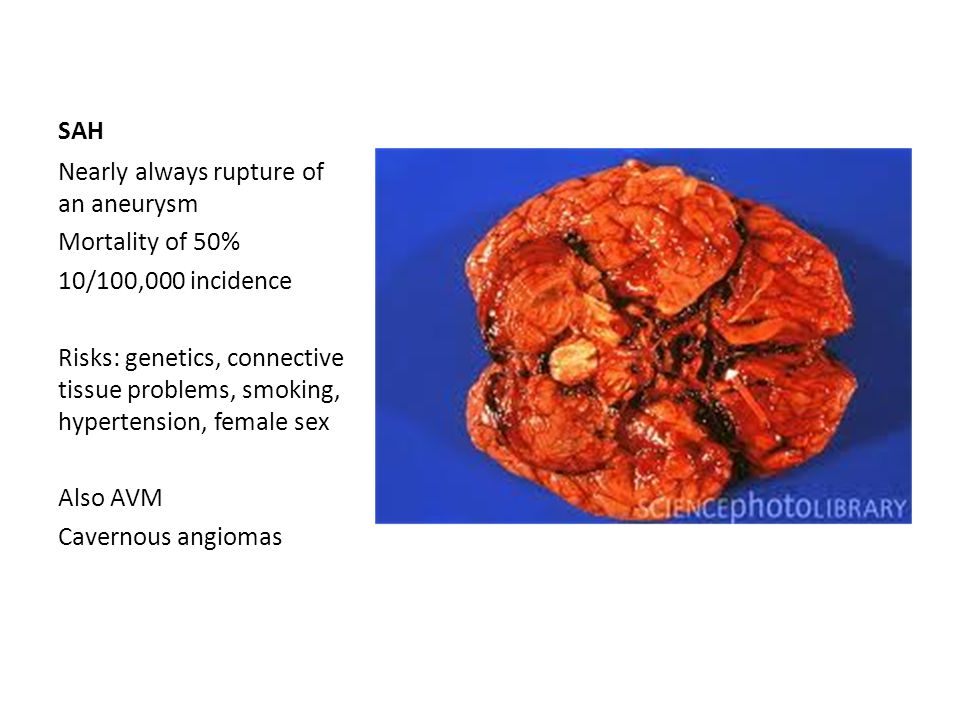 SAH Nearly always rupture of an aneurysm. Mortality of 50% 10/100,000 incidence.
