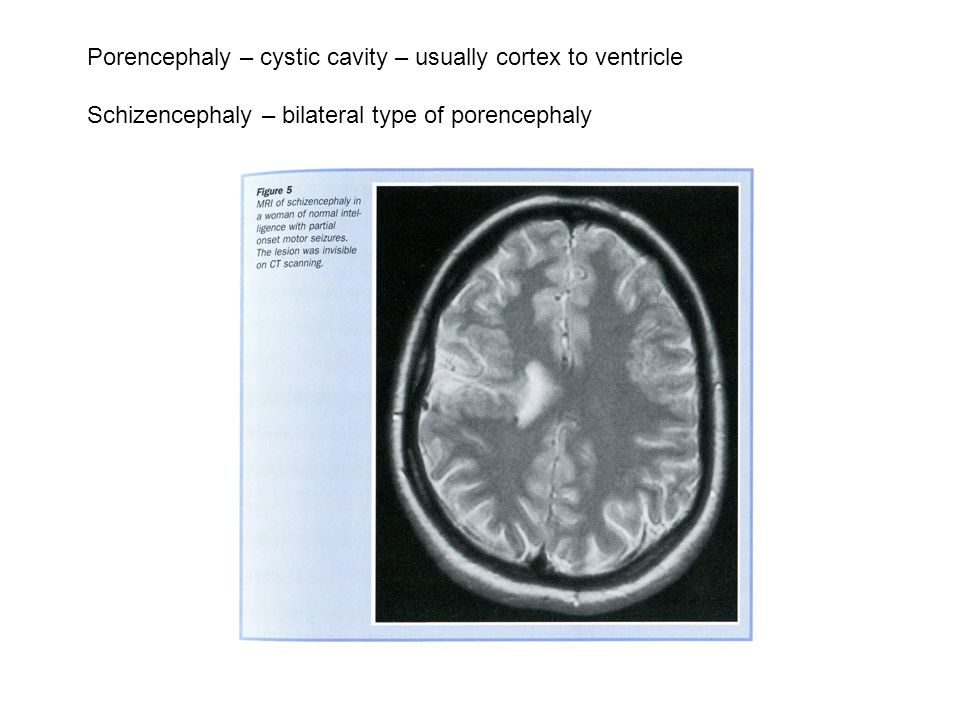 Porencephaly – cystic cavity – usually cortex to ventricle