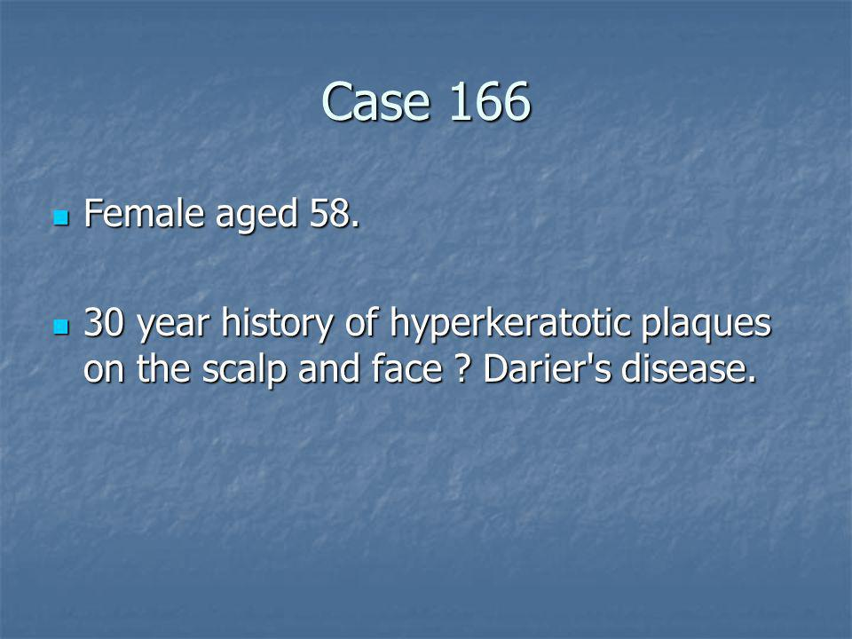 Case 166 Female aged 58. 30 year history of hyperkeratotic plaques on the scalp and face .