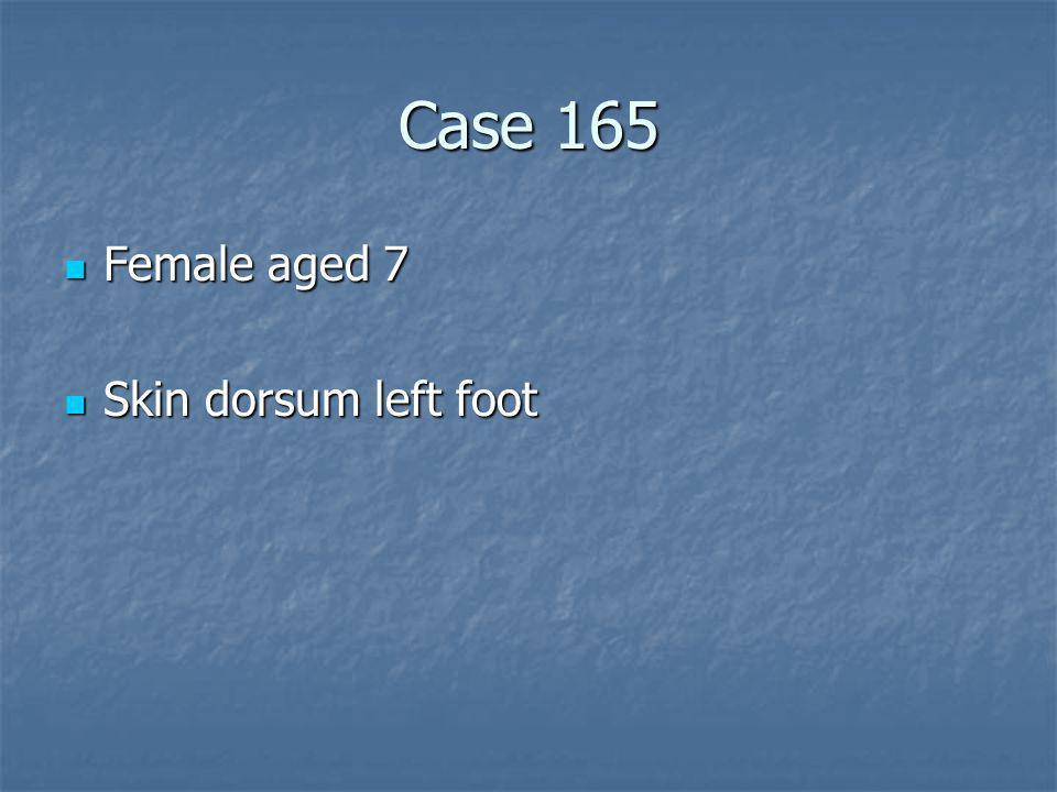 Case 165 Female aged 7 Skin dorsum left foot