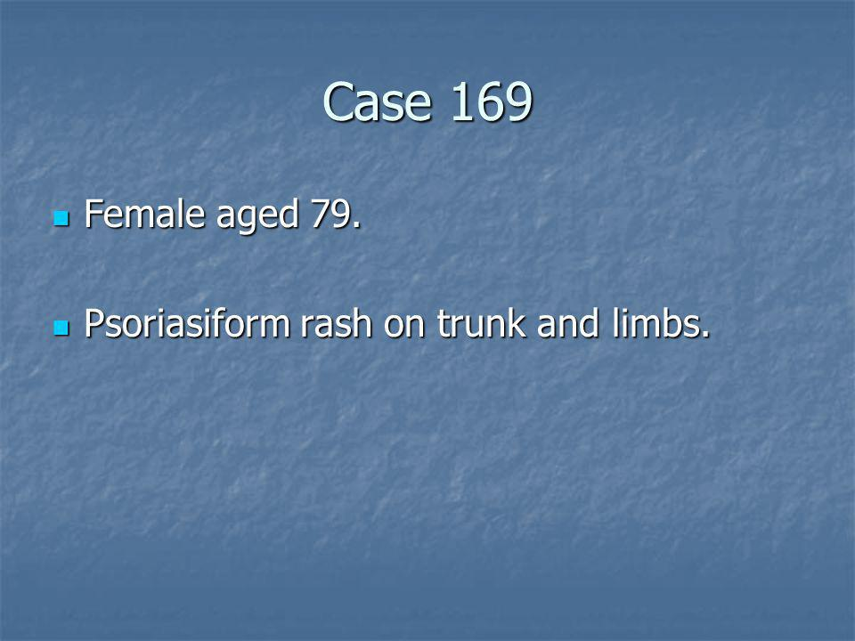 Case 169 Female aged 79. Psoriasiform rash on trunk and limbs.