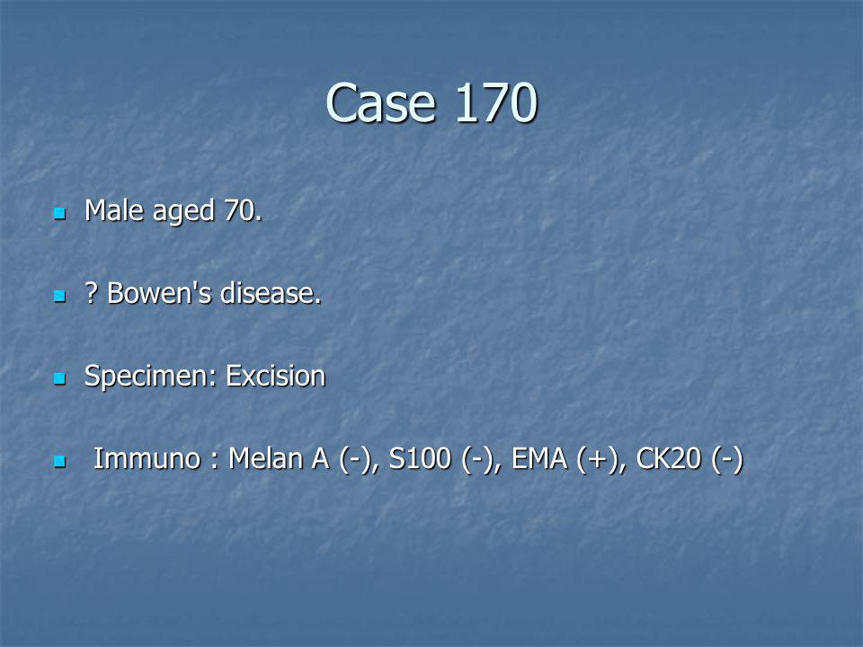 Case 170 Male aged 70. Bowen s disease. Specimen: Excision