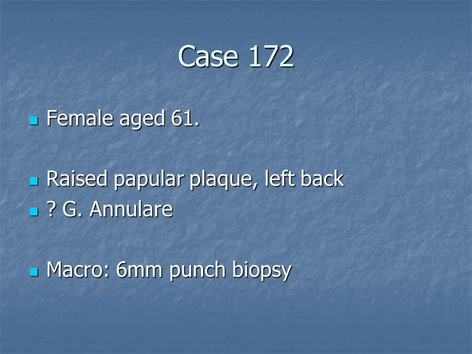 Case 172 Female aged 61. Raised papular plaque, left back